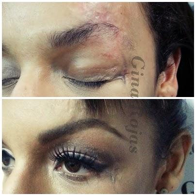 Cicatrices de vida