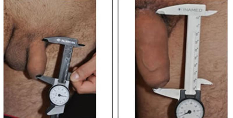 Como se ve el miembro antes de la operación del aumento
