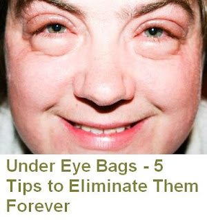 Under Eye Bags - 5 Tips to Eliminate Them Forever