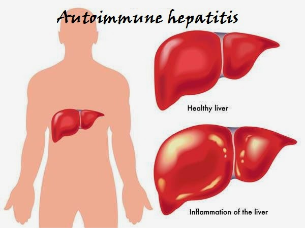What is Auto Immune Hepatitis?  Autoimmune hepatitis is a chronic or long lasting disease in which the body's immune system attacks the normal components, or cells, of the liver and causes inflammation and liver damage.    The immune system normally protects people from infection by identifying and destroying bacteria, viruses, and other potentially harmful foreign substances.   Autoimmune hepatitis is a serious condition that may worsen over time if not treated.    Autoimmune hepatitis can lead to cirrhosis and liver failure. Cirrhosis occurs when scar tissue replaces healthy liver tissue and blocks the normal flow of blood through the liver. Liver failure occurs when the liver stops working properly.  What is mean by autoimmune diseases? Autoimmune diseases are disorders in which the body's immune system attacks the body's own cells and organs with proteins called auto antibodies; this process is called autoimmunity.  The body's immune system normally makes large numbers of proteins called antibodies to help the body fight off infections. In some cases, however, the body makes auto antibodies. Certain environmental triggers can lead to autoimmunity. Environmental triggers are things originating outside the body, such as bacteria, viruses, toxins, and medications.  Causes for Auto Immune Hepatitis A combination of autoimmunity, environmental triggers, and a genetic predisposition can lead to autoimmune hepatitis.  Who mostly get Auto Immune Hepatitis Autoimmune hepatitis is more common in females. The disease can occur at any age and affects all ethnic groups.  Types of Auto Immune Hepatitis Autoimmune hepatitis is classified into several types. Type 1 autoimmune hepatitis is the most common form in North America. Type 1 can occur at any age; however, it most often starts in adolescence or young adulthood. About 70 percent of people with type 1 autoimmune hepatitis are female.  Type 1 autoimmune hepatitis commonly have other autoimmune disorders, such as  Celiac disease, an autoimmune disease in which people cannot tolerate gluten because it damages the lining of their small intestine and prevents absorption of nutrients  Crohn's disease, which causes inflammation and irritation of any part of the digestive tract  Graves' disease, the most common cause of hyperthyroidism in the United States  Hashimoto's disease, also called chronic lymphocytic thyroiditis or autoimmune thyroiditis, a form of chronic inflammation of the thyroid gland  Proliferative glomerulonephritis, or inflammation of the glomeruli, which are tiny clusters of looping blood vessels in the kidneys  Primary sclerosing cholangitis, which causes irritation, scarring, and narrowing of the bile ducts inside and outside the liver  Rheumatoid arthritis, which causes pain, swelling, stiffness, and loss of function in the joints  Sjögren's syndrome, which causes dryness in the mouth and eyes  Systemic lupus erythematosus, which causes kidney inflammation called lupus nephritis  Type 1 diabetes, a condition characterized by high blood glucose, also called blood sugar, levels caused by a total lack of insulin  Ulcerative colitis, a chronic disease that causes inflammation and sores, called ulcers, in the inner lining of the large intestine  Type 2 Auto Immune Hepatitis is less common and occurs more often in children than adults. People with type 2 can also have any of the above autoimmune disorders.  Symptoms of Auto Immune Hepatitis The most common symptoms of autoimmune hepatitis are  Fatigue  Joint pain  Nausea  Loss of appetite  Pain or discomfort over the liver  Skin rashes  Dark yellow urine  Light-colored stools  Jaundice or yellowing of the skin and whites of the eyes  Symptoms of autoimmune hepatitis range from mild to severe. Some people may feel as if they have a mild case of the flu. Others may have no symptoms.   Autoimmune Hepatitis - Diagnosis Doctor will make a diagnosis of autoimmune hepatitis based on symptoms, a physical exam, blood tests, and a liver biopsy. Doctor  performs a physical exam and reviews the person's health history, including the use of alcohol and medications that can harm the liver. A person usually needs blood tests for an exact diagnosis because a person with autoimmune hepatitis can have the same symptoms as those of other liver diseases or metabolic disorders.  Blood tests.  blood tests for auto antibodies to help distinguish autoimmune hepatitis from other liver diseases that have similar symptoms, such as viral hepatitis, primary biliary cirrhosis, steatohepatitis, or Wilson disease.   Autoimmune Hepatitis Treatment  Treatment for autoimmune hepatitis includes medication to suppress, or slow down, an overactive immune system.  Treatment works best when autoimmune hepatitis is diagnosed early.  People with autoimmune hepatitis generally respond to standard treatment and the disease can be controlled in most cases.  Long-term response to treatment can stop the disease from getting worse and may even reverse some damage to the liver.   Possible complication of autoimmune hepatitis and cirrhosis People with untreated autoimmune hepatitis and cirrhosis are at risk of developing liver cancer.   Eating, Diet, and Nutrition Researchers have not found that eating, diet, and nutrition play a role in causing or preventing autoimmune hepatitis.  Points to Remember  Autoimmune hepatitis is a chronic or long lasting disease in which the body's immune system attacks the liver and causes inflammation and damage.  Autoimmune hepatitis is a serious condition that may worsen over time if not treated. Autoimmune hepatitis can lead to cirrhosis and liver failure.  Autoimmune hepatitis is more common in females. The disease can occur at any age and affects all ethnic groups.  Autoimmune hepatitis is classified as type 1 or type 2.  A Doctor  will make a diagnosis of autoimmune hepatitis based on symptoms, a physical exam, blood tests, and a liver biopsy.  A person usually needs blood tests for an exact diagnosis because a person with autoimmune hepatitis can have the same symptoms as those of other liver diseases or metabolic disorders.  Treatment for autoimmune hepatitis includes medication to suppress, or slow down, an overactive immune system.  Treatment works best when autoimmune hepatitis is diagnosed early.  People with autoimmune hepatitis generally respond to standard treatment and the disease can be controlled in most cases.  In some people, autoimmune hepatitis progresses to cirrhosis and end-stage liver failure, and a liver transplant may be necessary.   Autoimmune Hepatitis Treatment   Treatment for autoimmune hepatitis includes medication to suppress, or slow down, an overactive immune system.   Treatment works best when autoimmune hepatitis is diagnosed early.   People with autoimmune hepatitis generally respond to standard treatment and the disease can be controlled in most cases.   Long-term response to treatment can stop the disease from getting worse and may even reverse some damage to the liver.  Homeopathy Treatment for Auto Immune Hepatitis Symptomatic Homeopathy works well for Auto Immune Hepatitis, It helps to extend the Life Span,  So its good to consult a experienced Homeopathy physician without any hesitation.