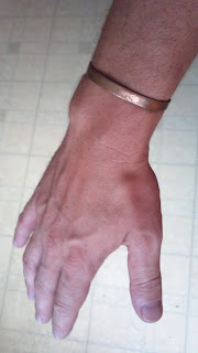 arm with a copper bracelet