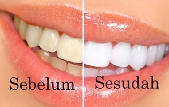 Cara murah dan mudah dapatkan gigi yang putih menawan