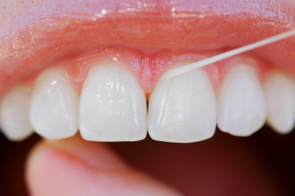 76b412054 ... bucal uma coisa é certa  os dentes precisam ser escovados após cada  refeição