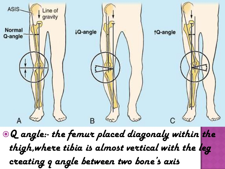 Patellar tracking disorder and McConnell Taping