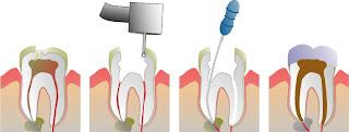 endodoncia tratamiento conducto perno corona