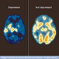 Scan showing there is a a significant loss of neurotransmitter activity in the brain of a depressed person