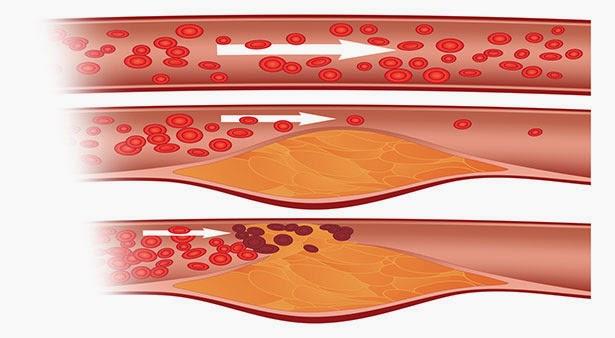 Obat Dan Makanan Penurun Kadar Kolesterol Tinggi ( LDL Kolesterol )