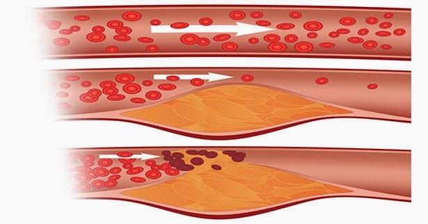 Obat Dan Makanan Penurun Kadar Kolesterol Tinggi ( LDL ...
