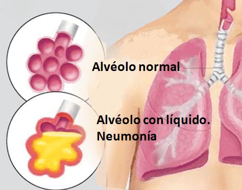 viagra blood in urine