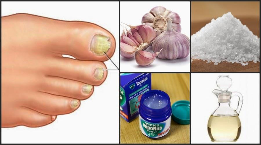 Sanar el hongo de las uñas por medio del vinagre