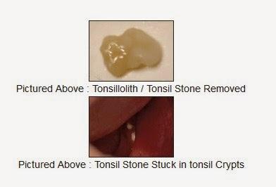 Tonsil Stones Secret Home Remedies Download Free
