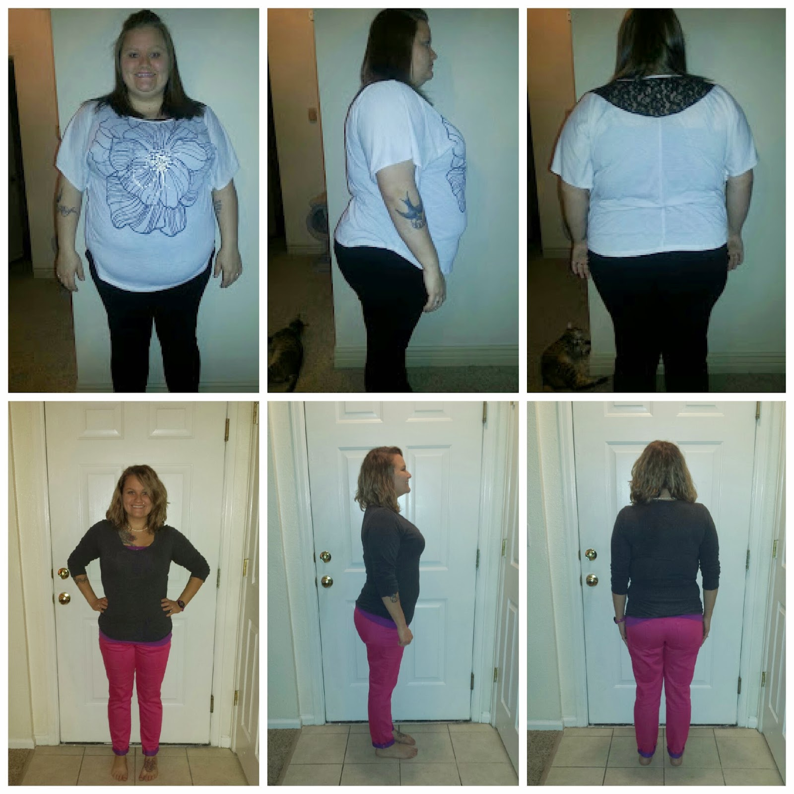 Get Moving After Weight-Loss Surgery foto