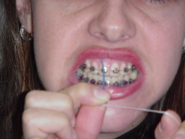 piercing no dente. o dentista cola no dente e