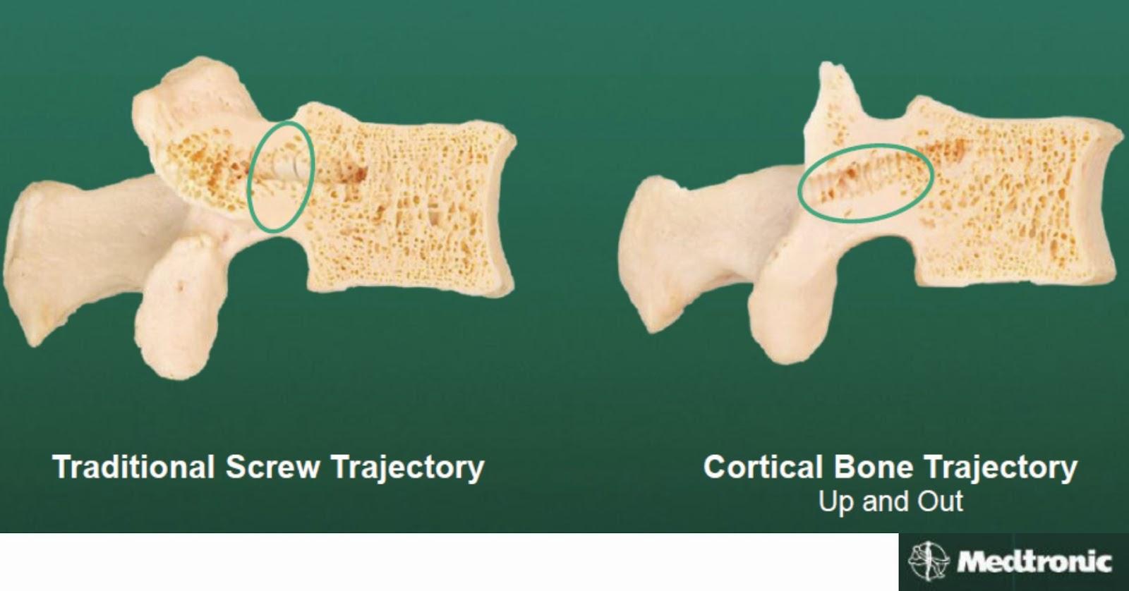Midlif Cortical Bone Trajectoty Technique Spine Neurosurgeon Dr