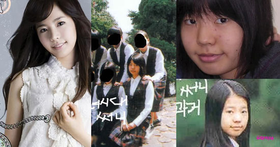 Sunny SNSD Plastic Surgery Before
