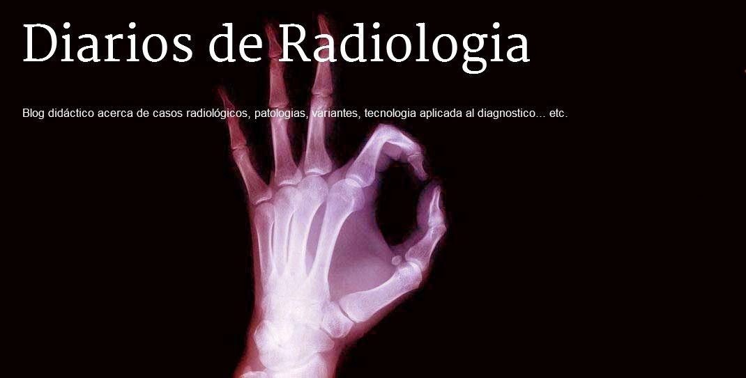 Diarios de Radiologia