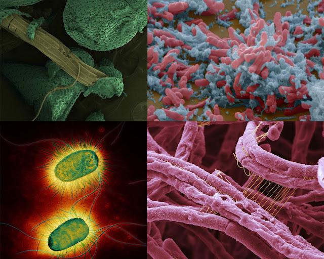 virus y bacterias, micrografias