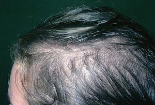 Haarkrankheiten resultierenden in Haarausfall