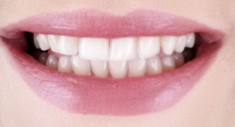 Teeth Before using Blanx White Shock Intensive Whitening Treatment