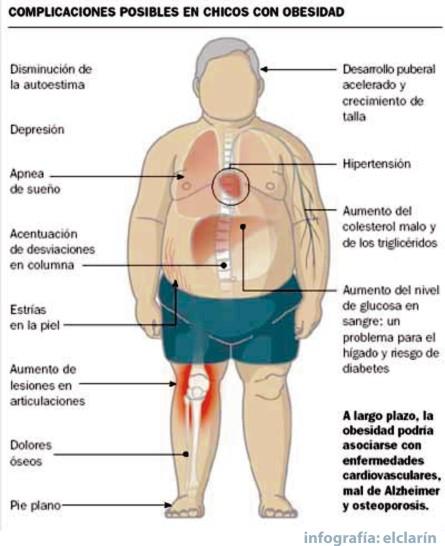 genetica nino obeso familia obesa: