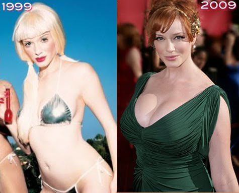 Christina hendricks breast implants