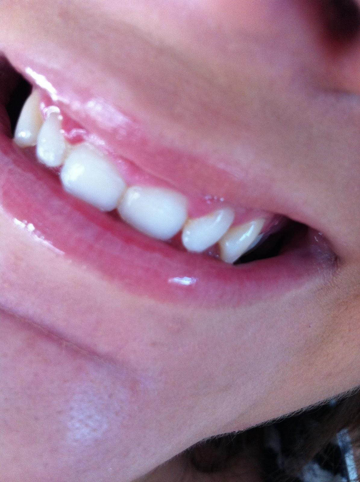 novon white dental beauty instructions
