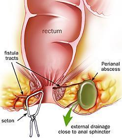 Anal fistulas and augmentin