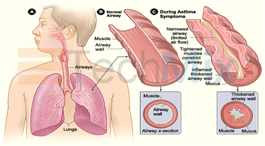 asthma the causes and symptoms