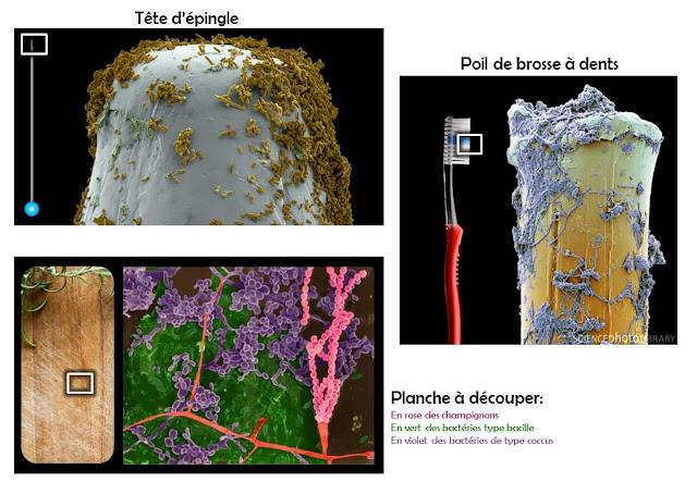 MEB tete d epingle, brosse à dent poil, planche à découper. Vu au microscope electronique à balayage. SEM needle, toothbrush