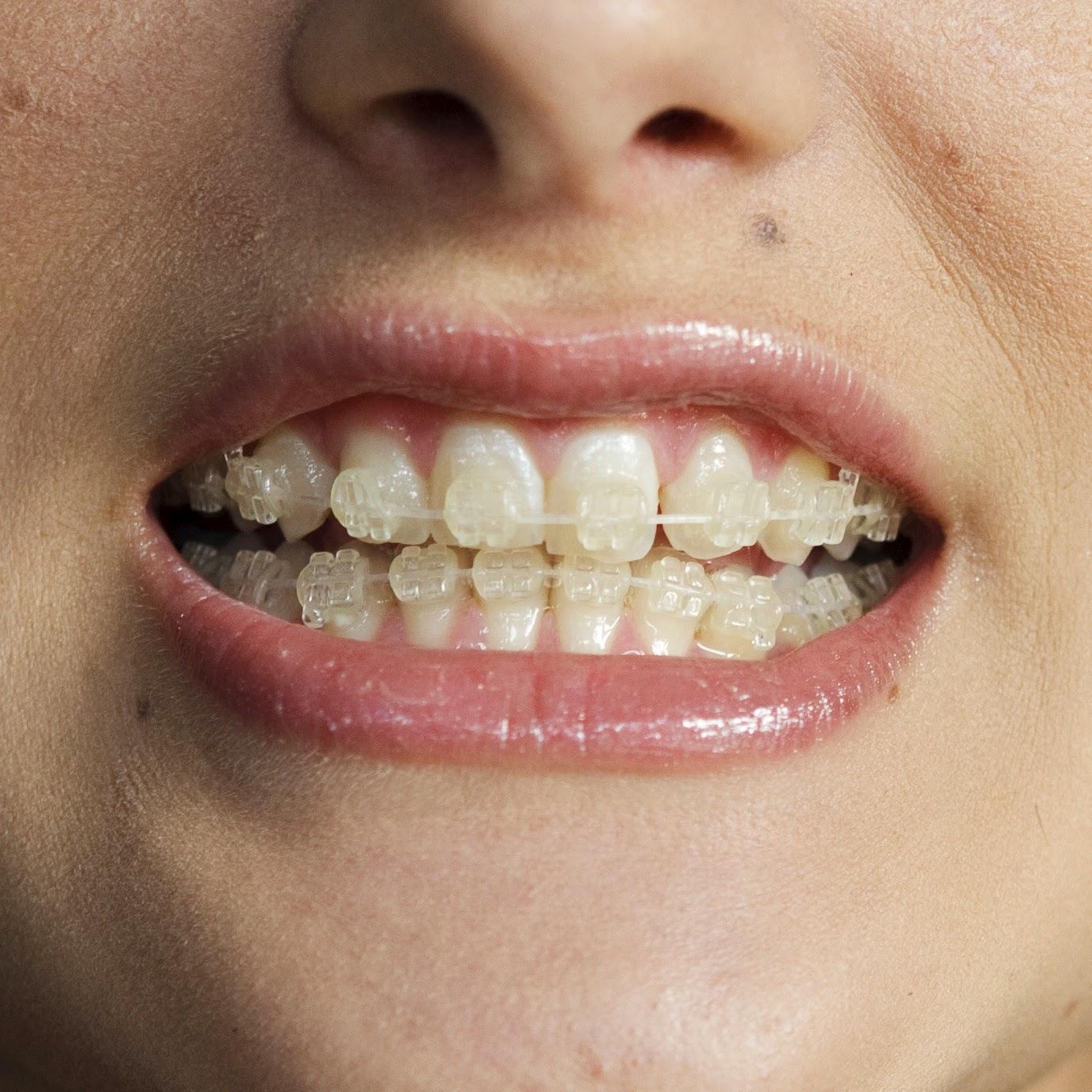 Ceramic braces. Features of ceramic braces