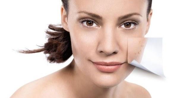 El acné de los recién nacidos o potnichka