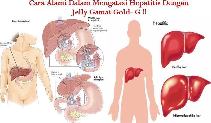 Obat Tradisional Hepatitis Ekstrak Teripang