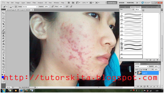 How to Clean Up the Acnes on Photos (Cara Menghilangkan Noda/Jerawat pada Foto dengan Photoshop)
