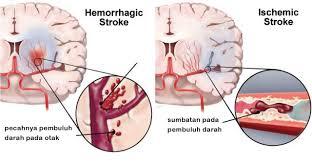 Gejala Stroke Ringan, Hemoragik, Iskemik: Gejala dan Pencegahan Stroke  Ringan,Hemoragik,Iskemik