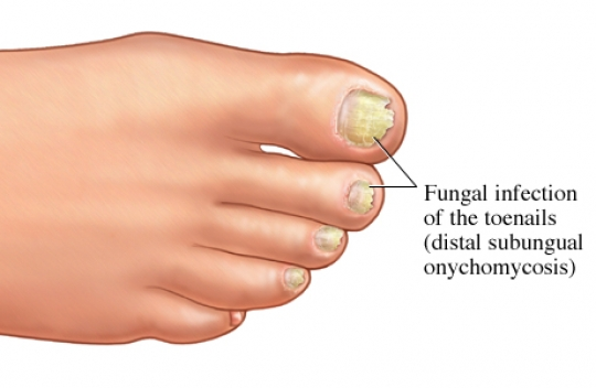 Si es posible pintar las uñas por el barniz en los pies al hongo de la uña