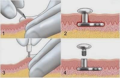 Procedure Microdermal piercing