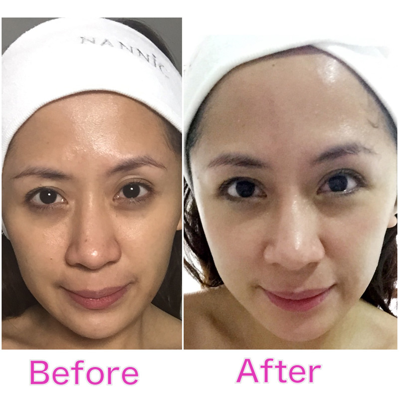 Wiped years off your face with nannic nbe radio frequency treatment the photo of the after was taken immediately thereafter i had the nannic nbe radio frequency treatment so you can see the results for yourself solutioingenieria Images