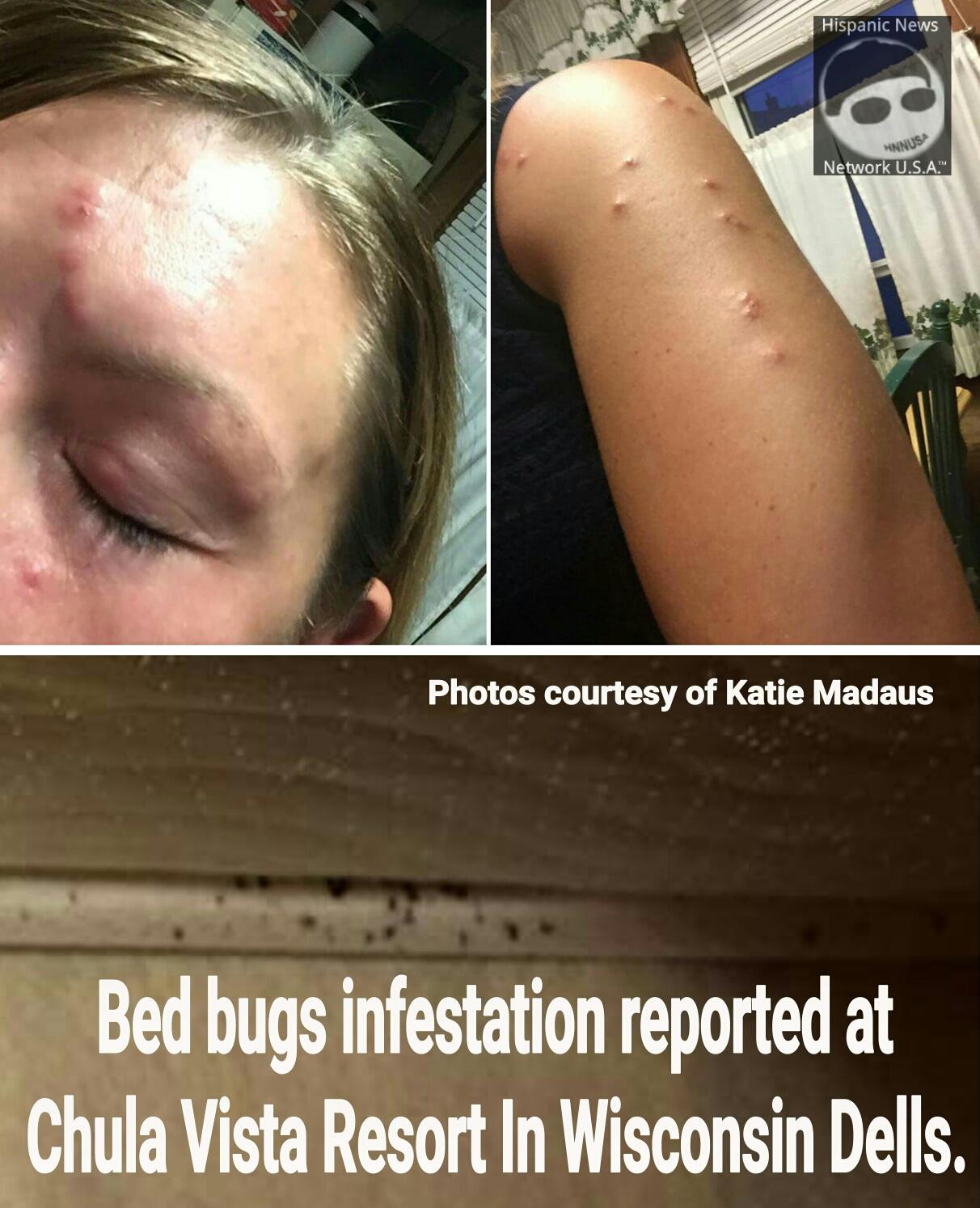 Bed Bugs At Chula Vista Resort