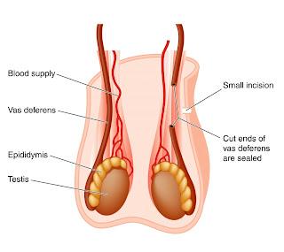 Apa itu vasektomi
