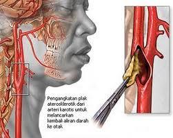 askep stroke non hemoragik,stroke non hemoragik,asuah keperawatan stroke non hemoragik, SNH