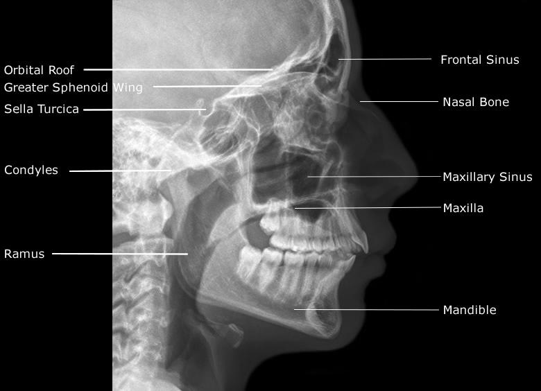 Skull x ray anatomy