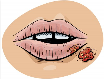 Cold Sore Contagious Stage : A Resolution For Cold Sore Outbreaks