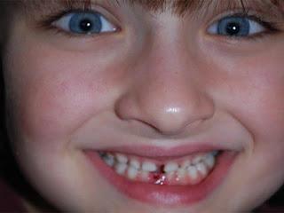Tips Menjaga Kesehatan Gigi Dan Mulut Anak