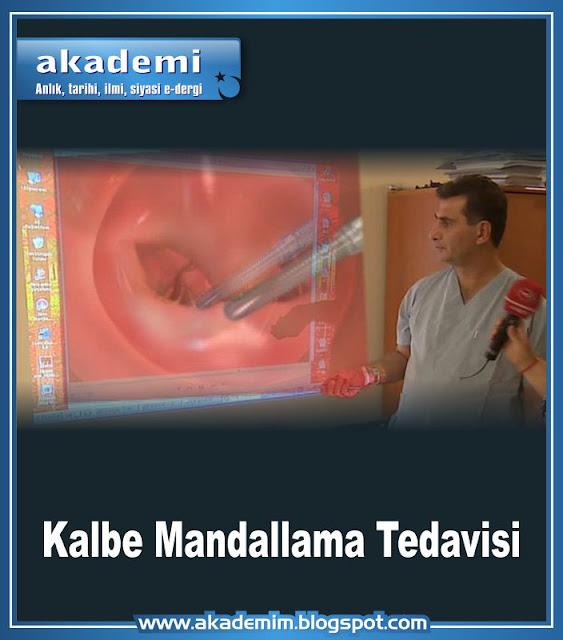 Kalbe Mandallama Tedavisi