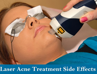 Laser Acne Treatment Side Effects