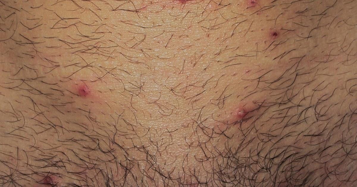 Dermapixel: Unos granos en el pubis