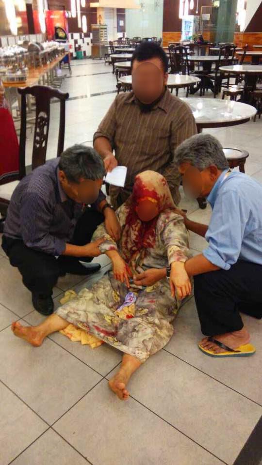 Penjawat Awam Wanita Diserang Juruteknik Bangunan Di Putrajaya