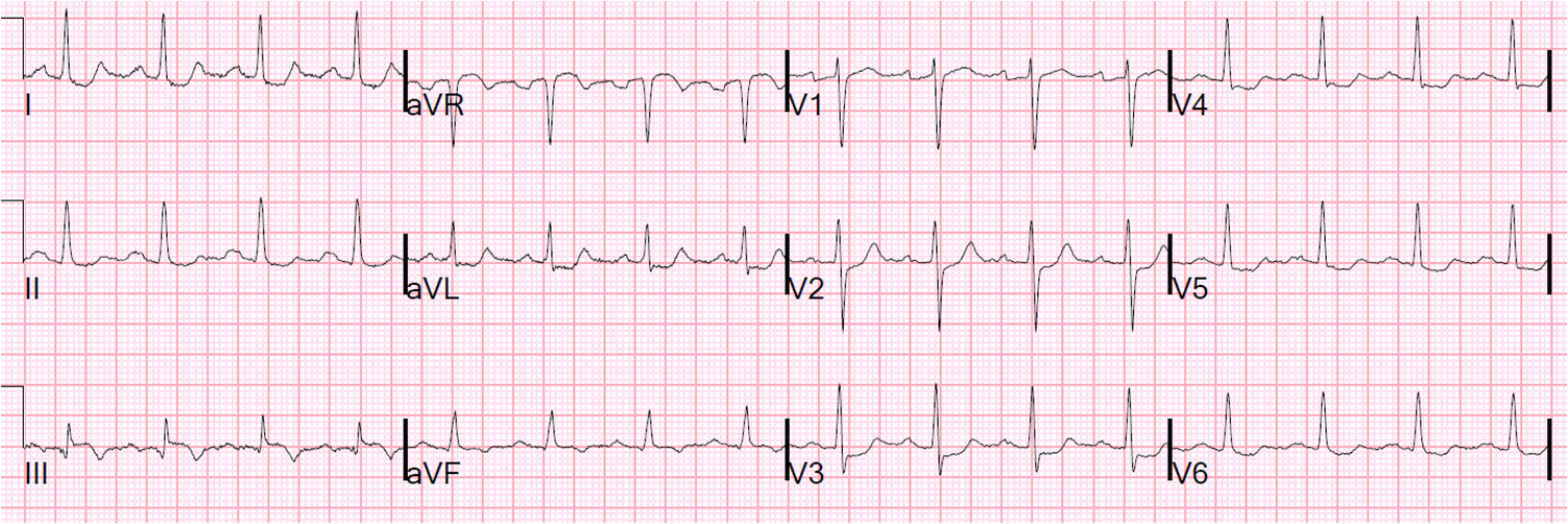 Dr. Smith's ECG Blog: A Non STEMI that needs the cath lab now.