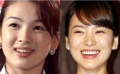 Netizen Buzz Pann Stars Who Fixed Their Teeth