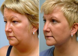 liposuccion rostro antes y despues
